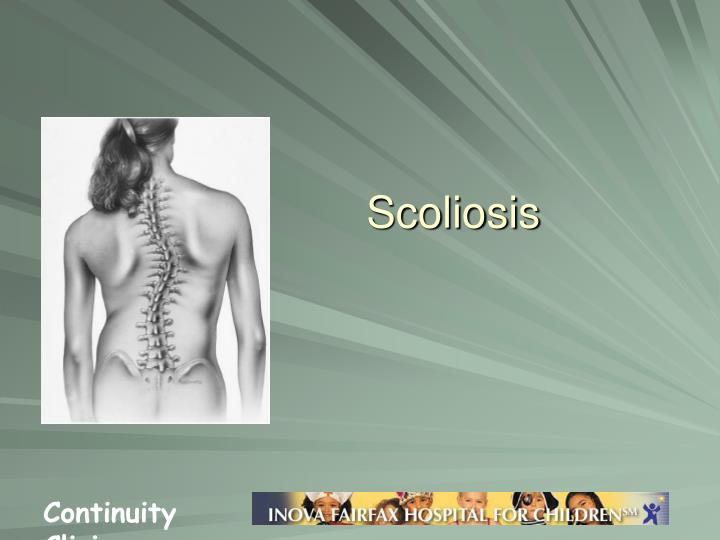 Can scoliosis be reversed in adults