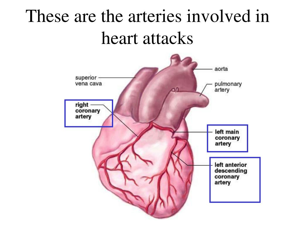 These are the arteries involved in heart attacks