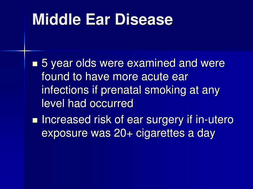 Middle Ear Disease