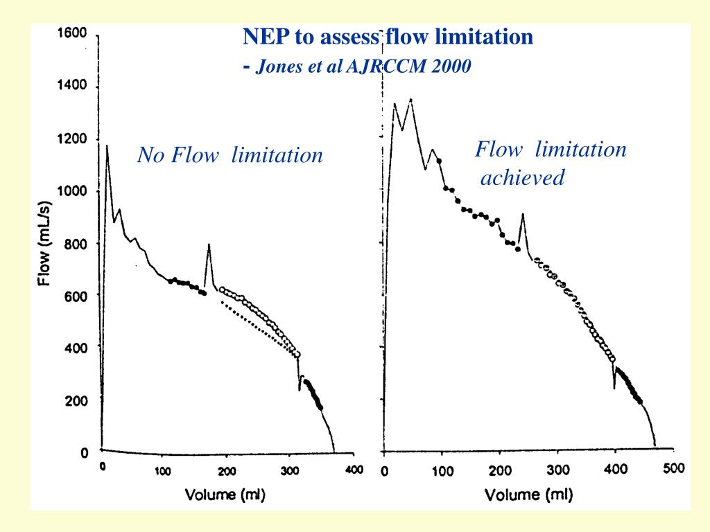 NEP to assess flow limitation