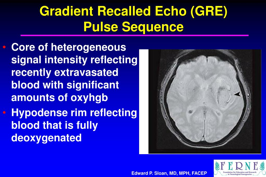 Gradient Recalled Echo (GRE)