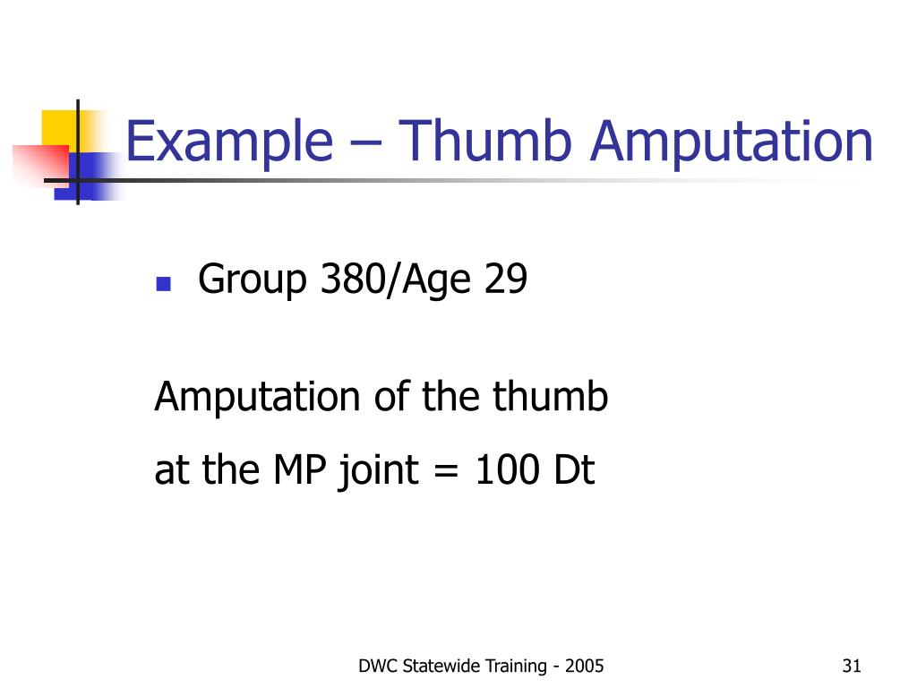 Example – Thumb Amputation