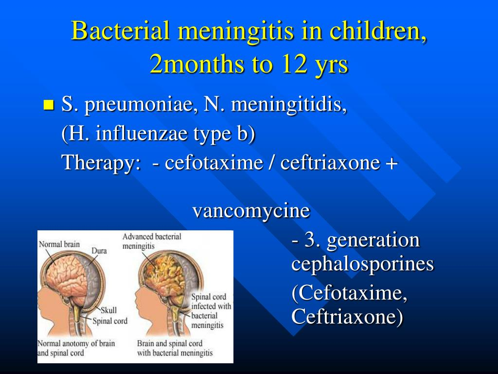PPT - Principles of antibiotic therapy in paediatrics PowerPoint Presentation - ID:684952  PPT - Principle...