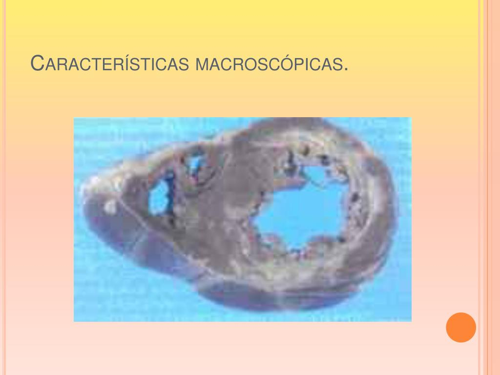 Características macroscópicas.