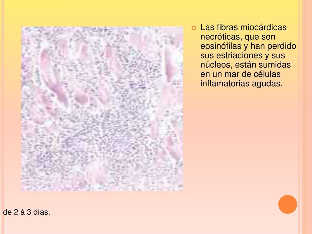 Las fibras miocárdicas necróticas, que son eosinófilas y han perdido sus estriaciones y sus núcleos, están sumidas en un mar de células inflamatorias agudas.