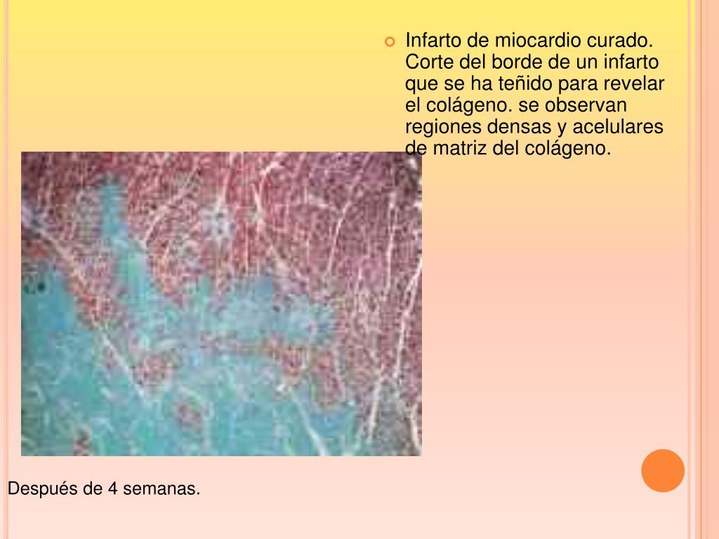 Infarto de miocardio curado. Corte del borde de un infarto que se ha teñido para revelar el colágeno. se observan regiones densas y acelulares de matriz del colágeno.