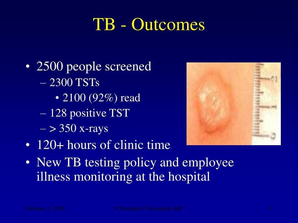 TB - Outcomes