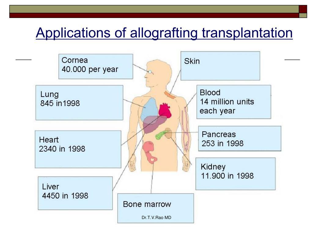 Applications of allografting transplantation