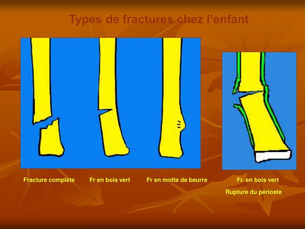 Types de fractures chez l'enfant