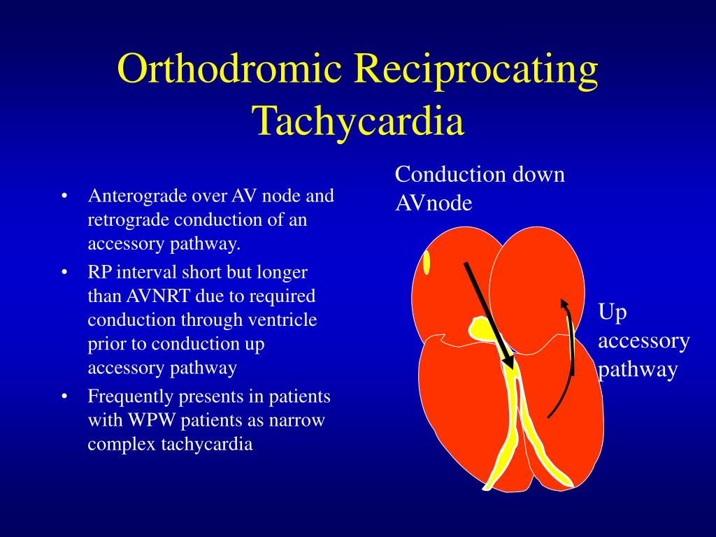 Orthodromic Reciprocating Tachycardia