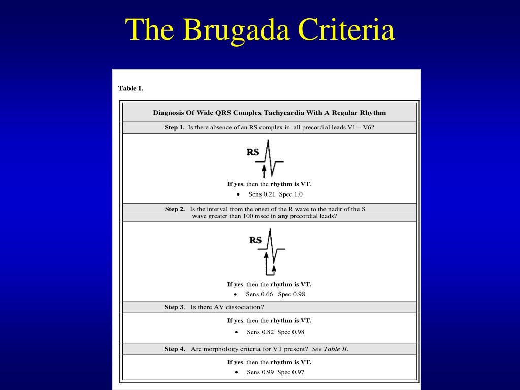 The Brugada Criteria