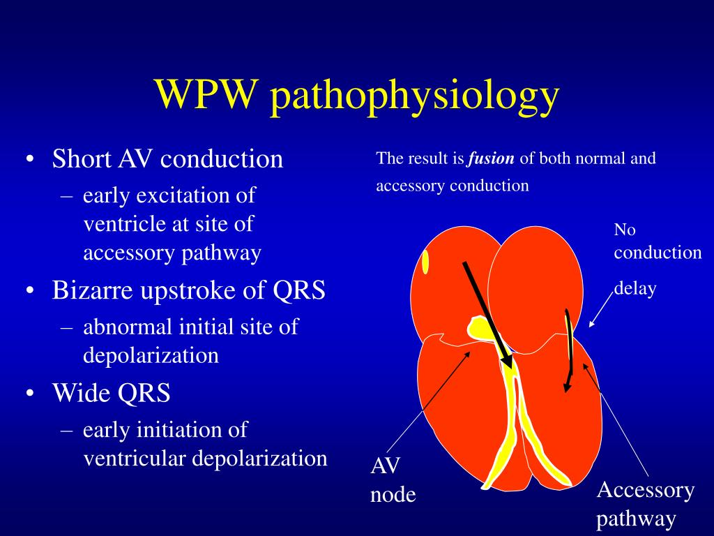 WPW pathophysiology