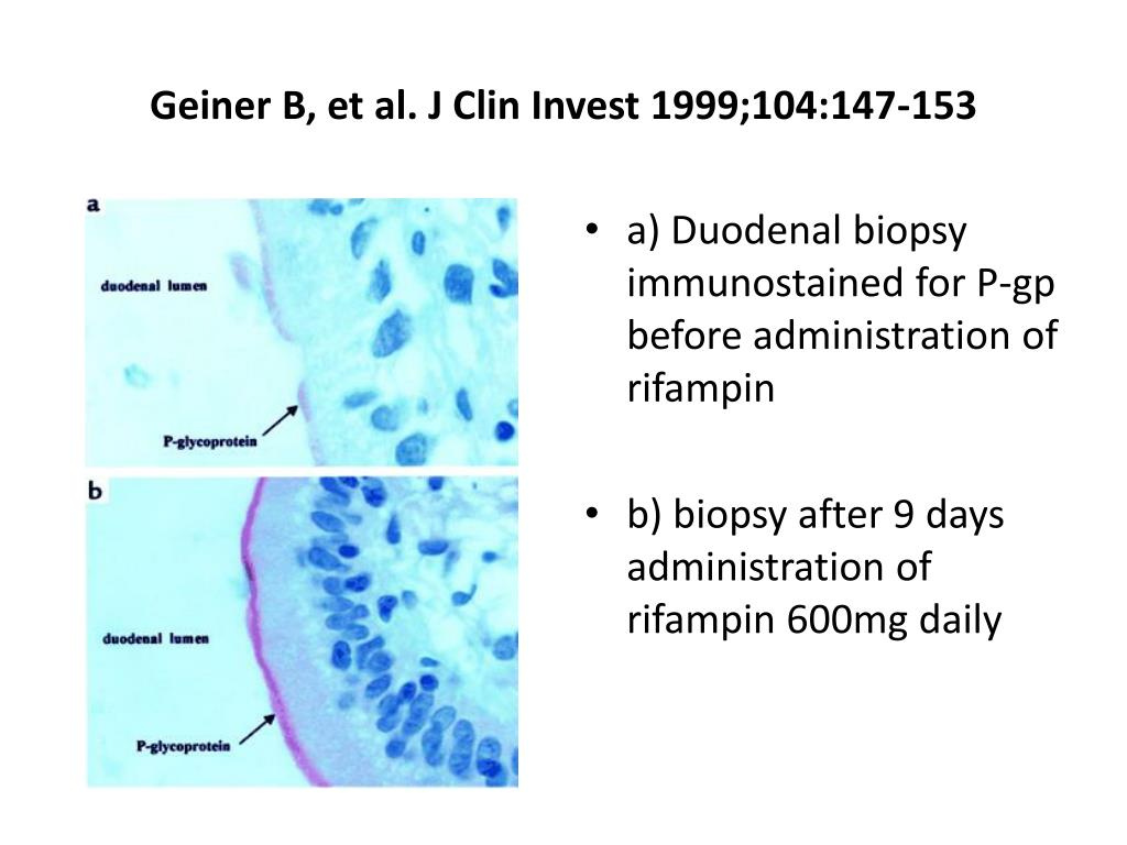Geiner B, et al. J Clin Invest 1999;104:147-153
