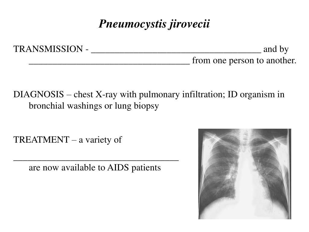 Pneumocystis jirovecii