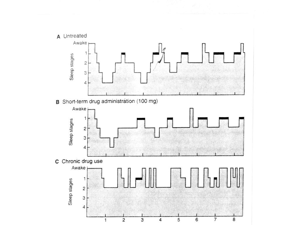Effect of pentobarbital on sleep