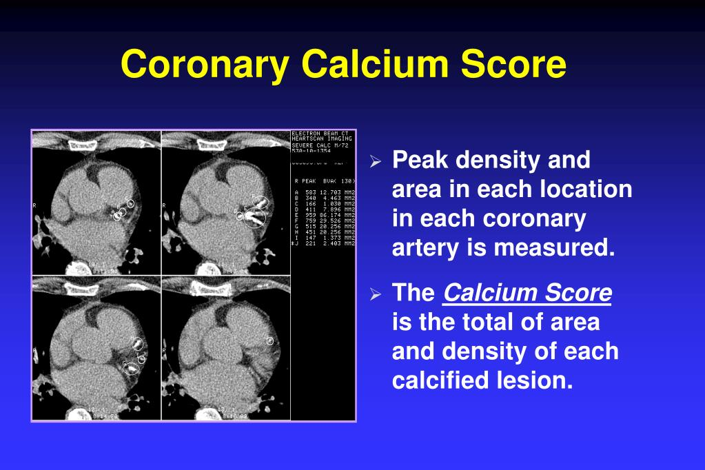 Coronary Calcium Score