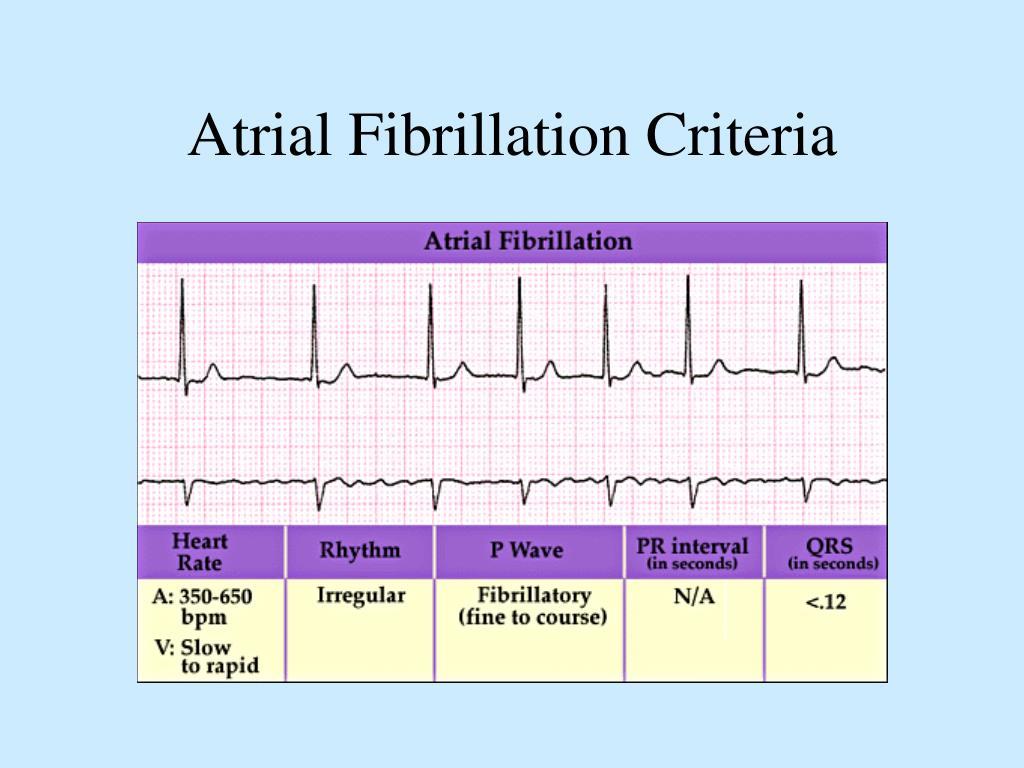 Atrial Fibrillation Criteria