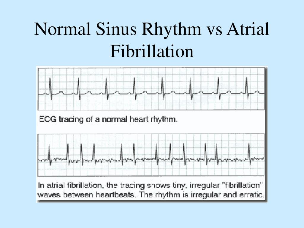 Normal Sinus Rhythm vs Atrial Fibrillation