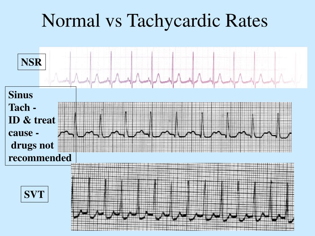 Normal vs Tachycardic Rates