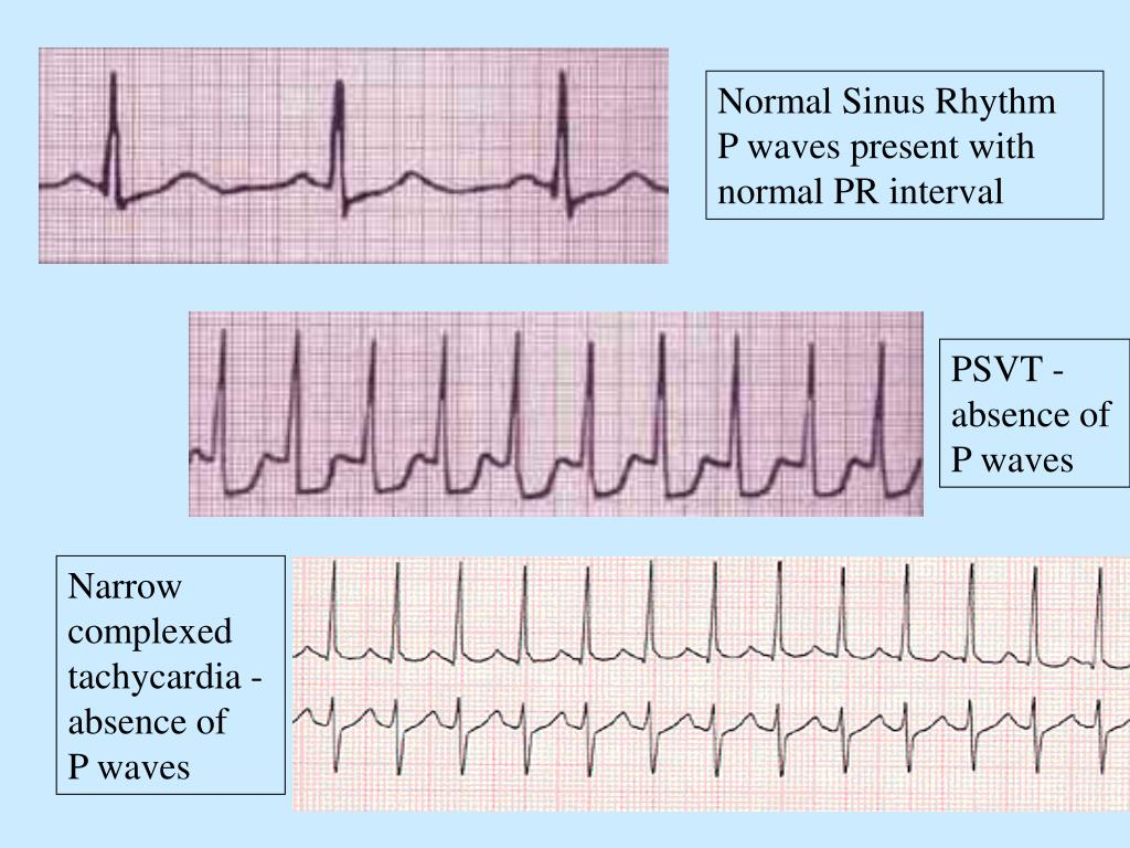 Normal Sinus Rhythm