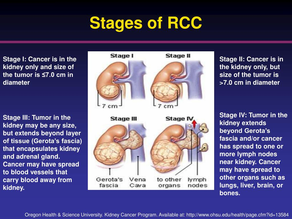 Stages of RCC