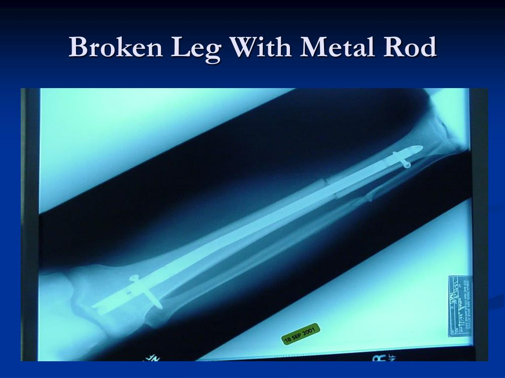 Broken Leg With Metal Rod