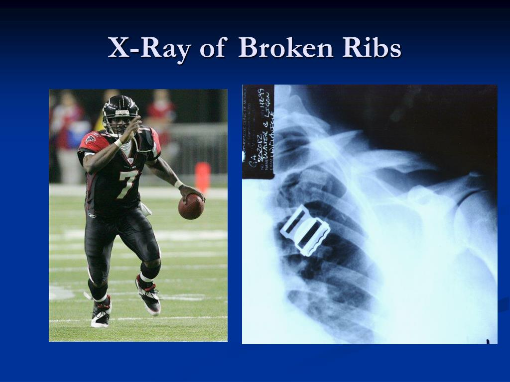 X-Ray of Broken Ribs
