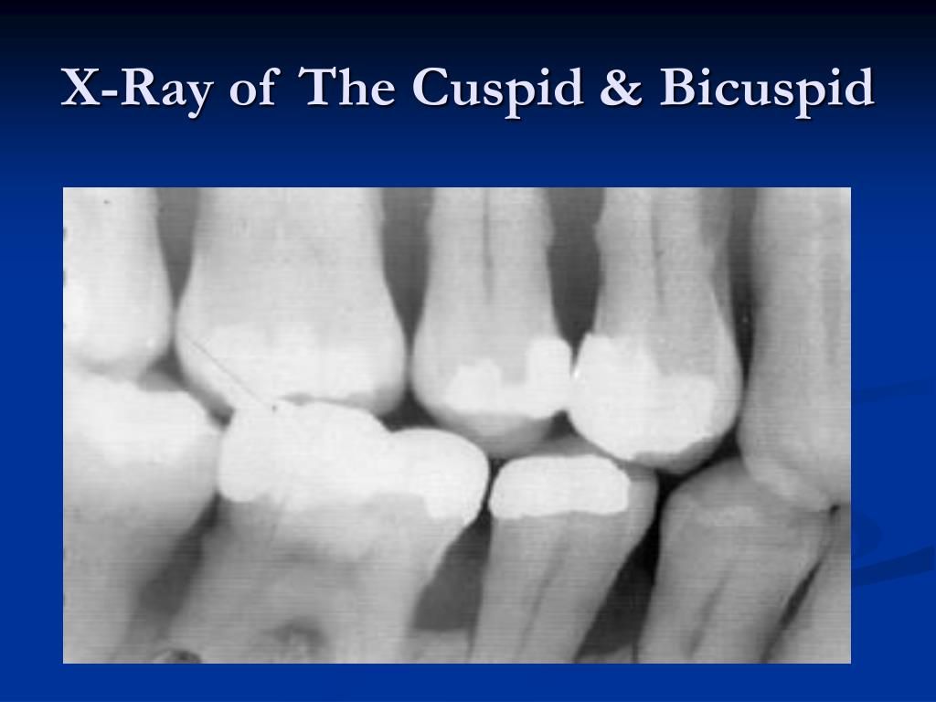 X-Ray of The Cuspid & Bicuspid