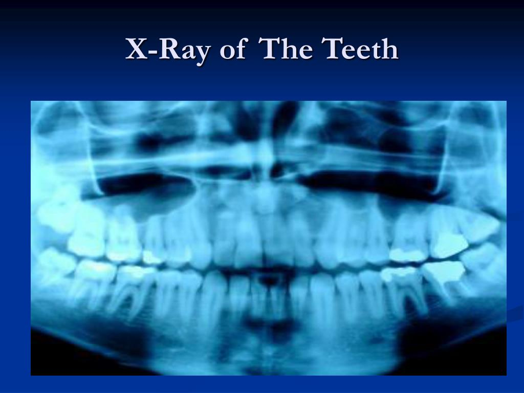 X-Ray of The Teeth