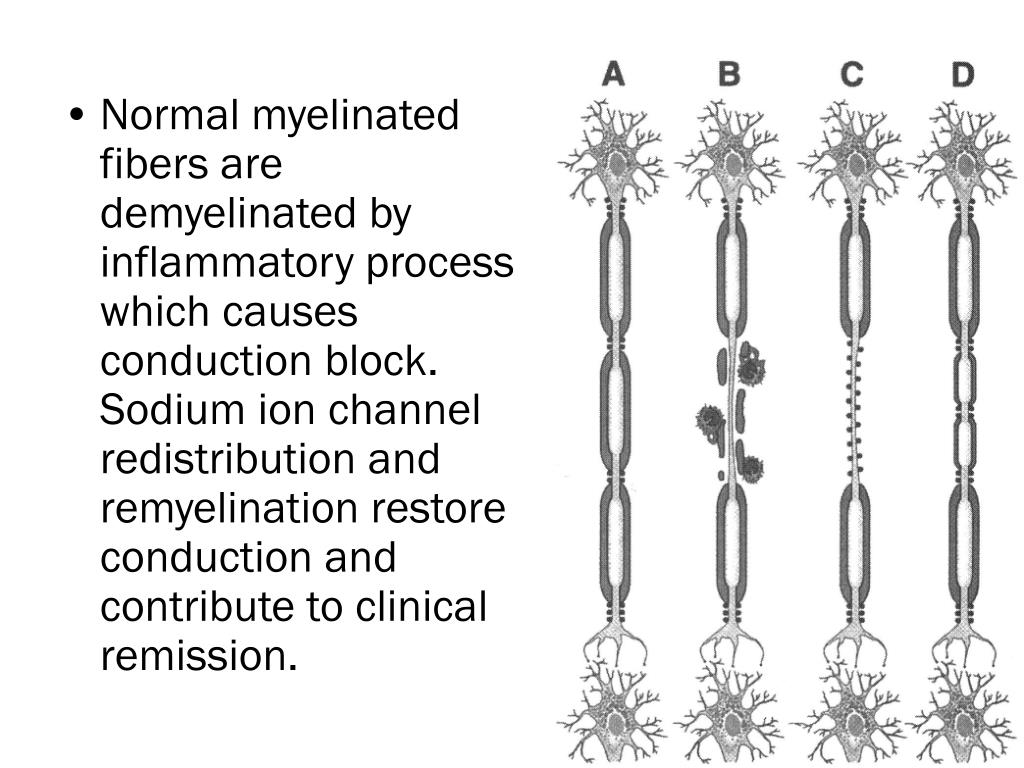 Normal myelinated fibers are demyelinated by inflammatory process which causes conduction block. Sodium ion channel redistribution and remyelination restore conduction and contribute to clinical remission.