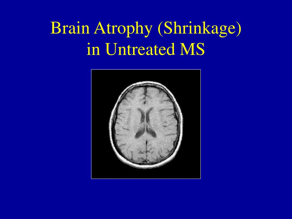 Brain Atrophy (Shrinkage)