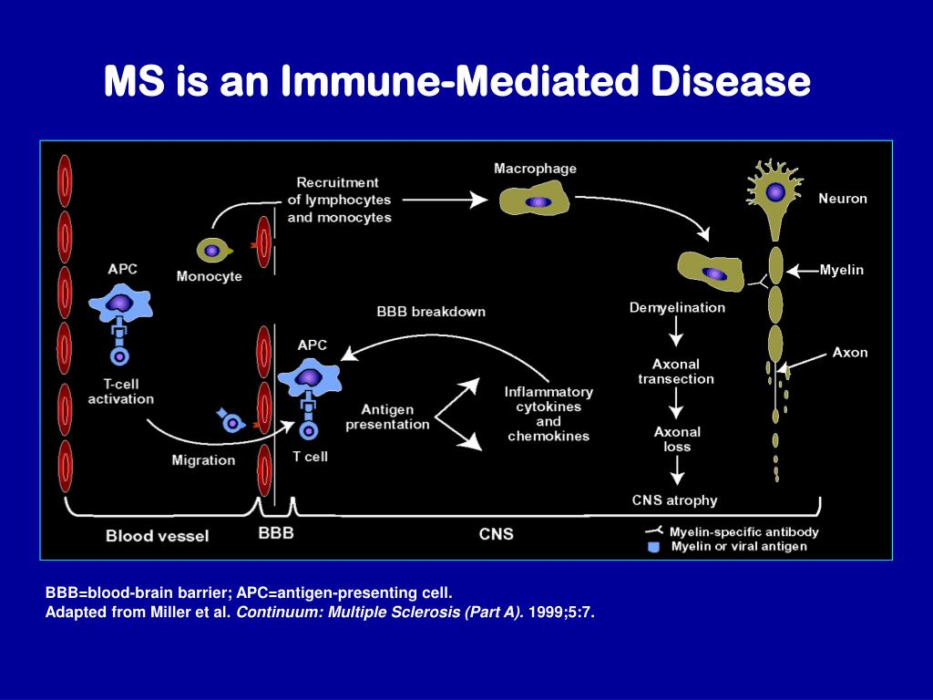 MS is an Immune-Mediated Disease