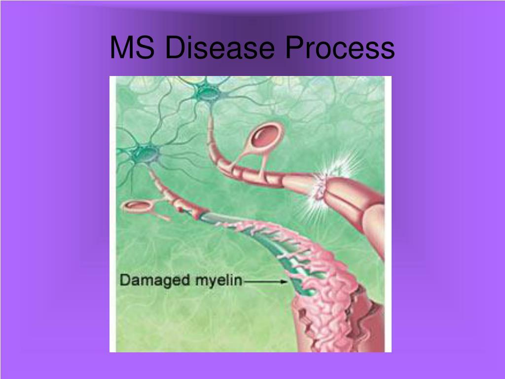 MS Disease Process