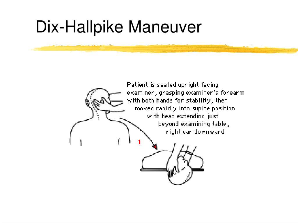 Dix-Hallpike Maneuver