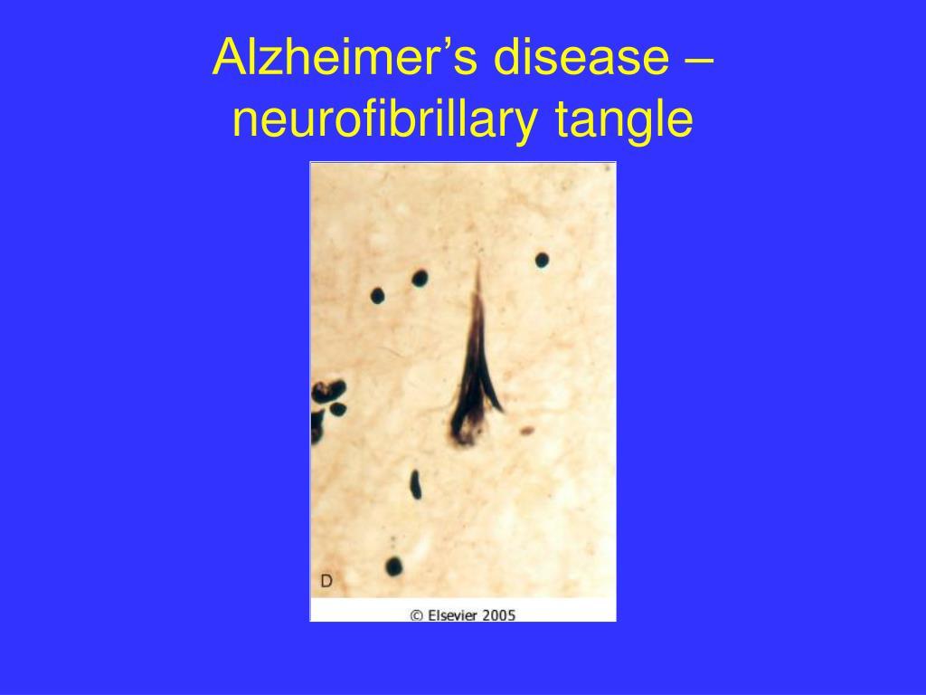 Alzheimer's disease –