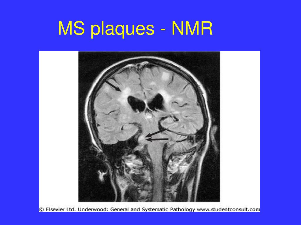 MS plaques - NMR
