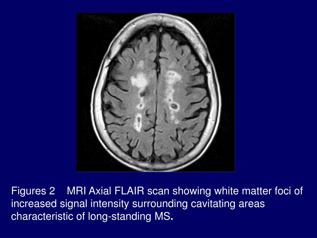 Figures 2    MRI Axial FLAIR scan showing white matter foci of increased signal intensity surrounding cavitating areas characteristic of long-standing MS