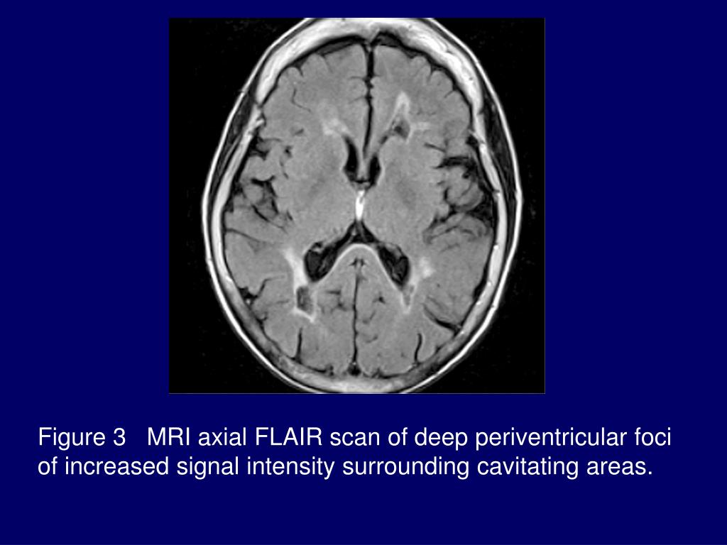 Figure 3   MRI axial FLAIR scan of deep periventricular foci of increased signal intensity surrounding cavitating areas.