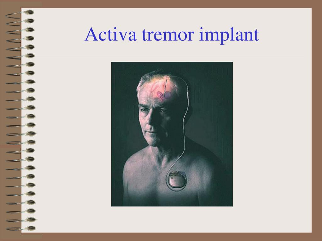 Activa tremor implant