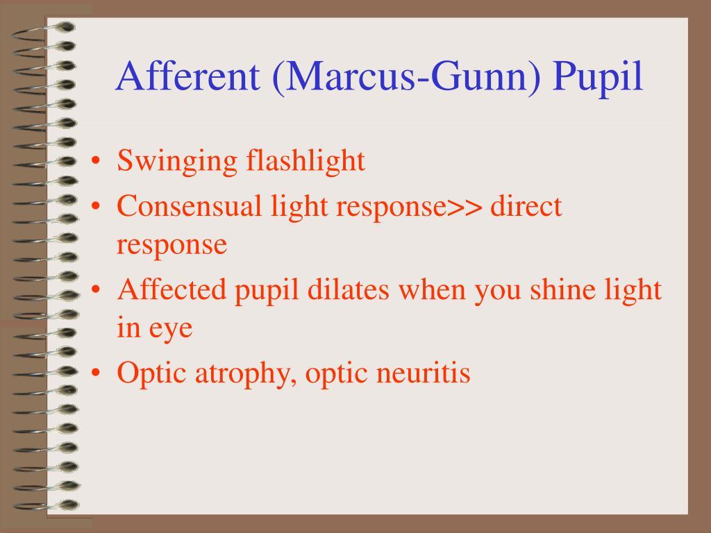 Afferent (Marcus-Gunn) Pupil