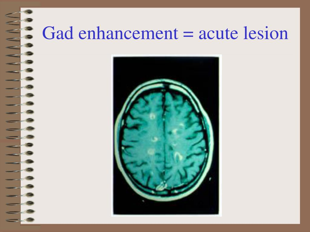Gad enhancement = acute lesion