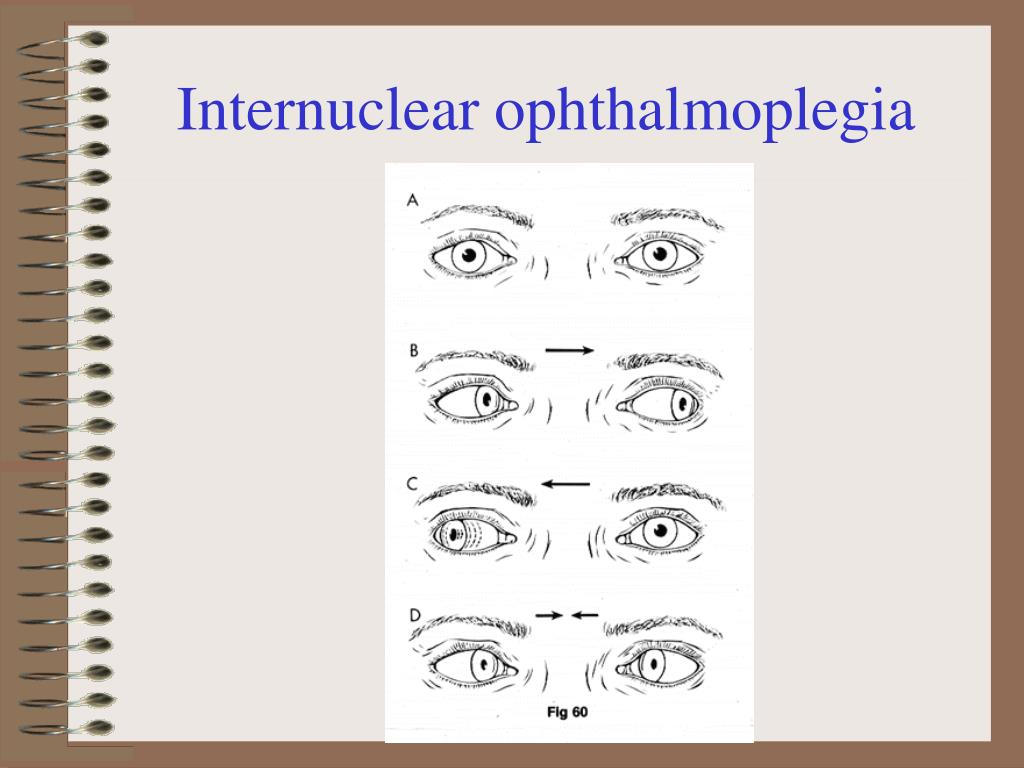Internuclear ophthalmoplegia