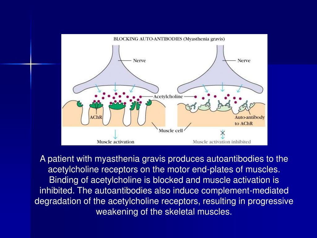 A patient with myasthenia gravis produces autoantibodies to the acetylcholine receptors on the motor end-plates of muscles. Binding of acetylcholine is blocked and muscle activation is inhibited. The autoantibodies also induce complement-mediated degradation of the acetylcholine receptors, resulting in progressive weakening of the skeletal muscles.