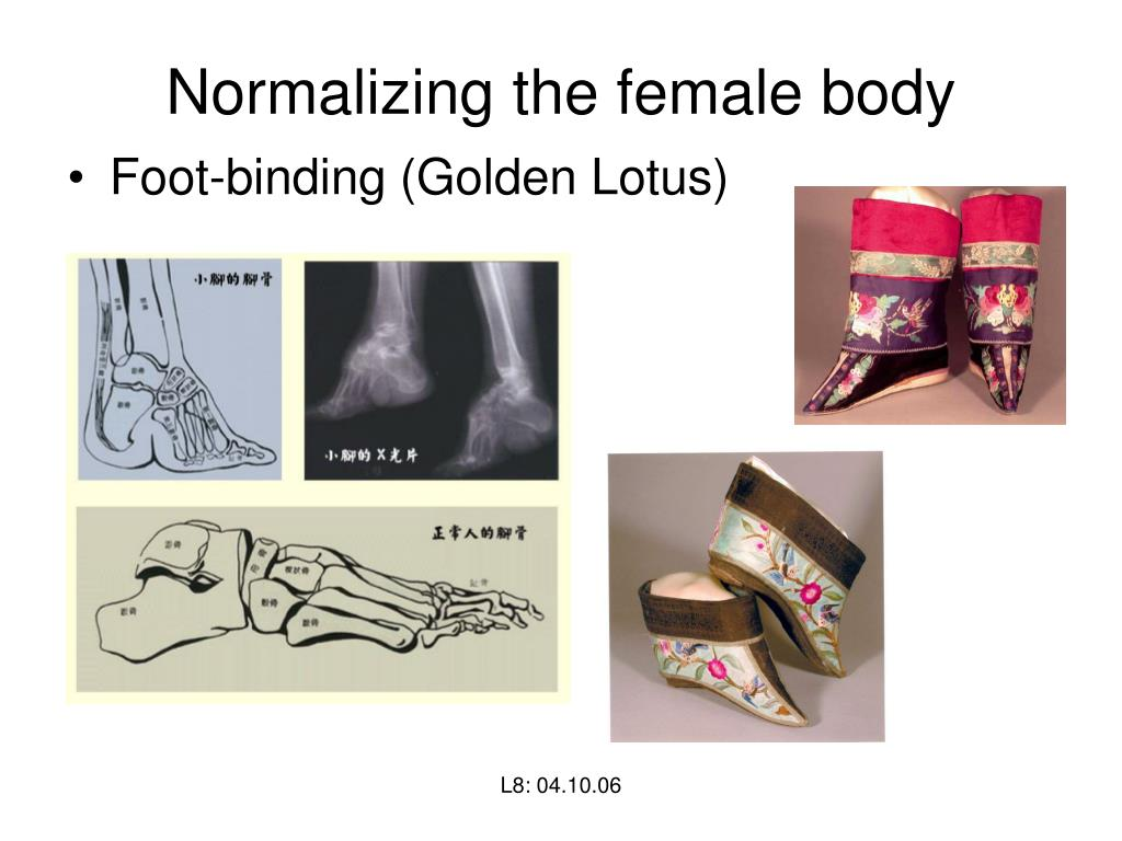 Normalizing the female body