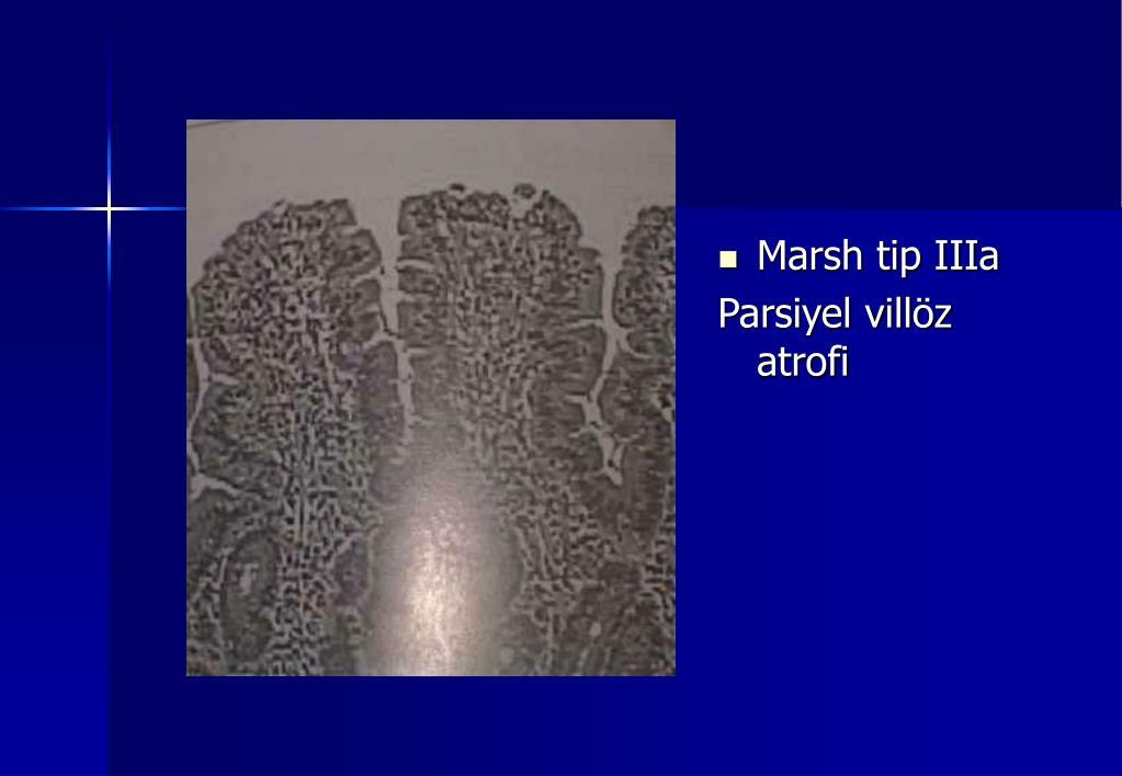 Marsh tip IIIa