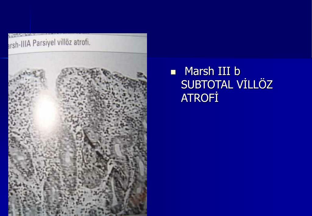 Marsh III b SUBTOTAL VİLLÖZ ATROFİ