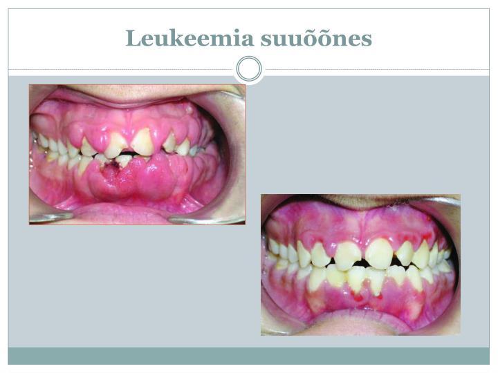 Leukeemia suuõõnes