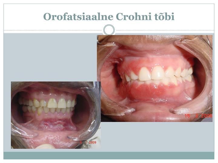 Orofatsiaalne
