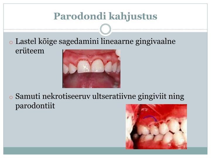 Parodondi
