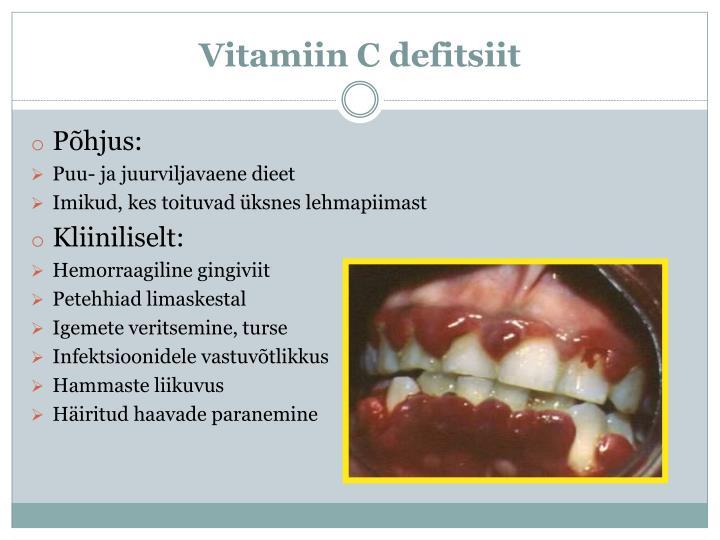 Vitamiin C defitsiit